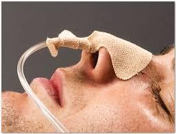 تغذیه از طریق لوله بینی - معدی (gavage)